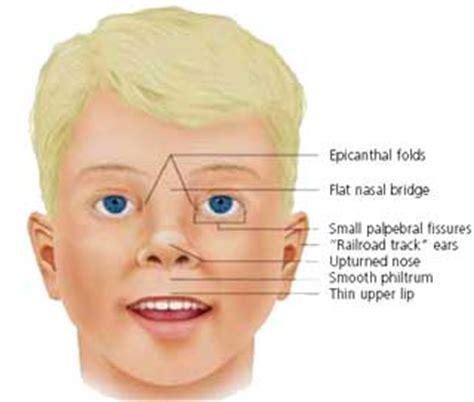 thyroid test criteria picture 10