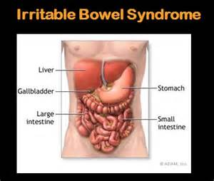 bowel disorder picture 6