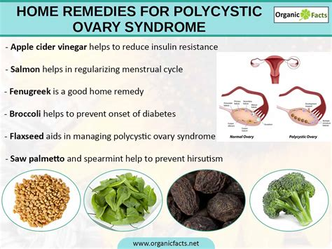 polycystic liver disease picture 7