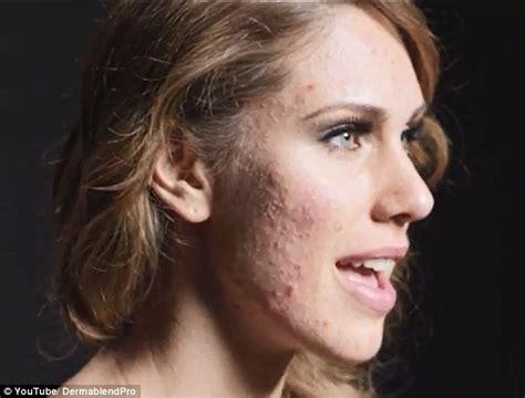 acne exoris picture 14