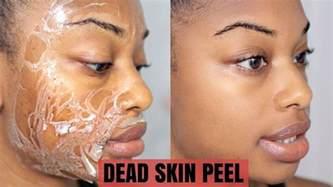 dead skin tutorial picture 17