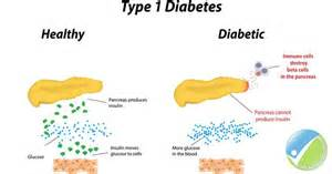 reasons why type 1 diabetics are tired picture 3