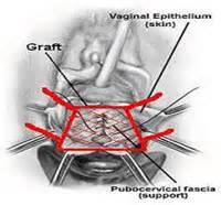 bladder repair technique picture 13