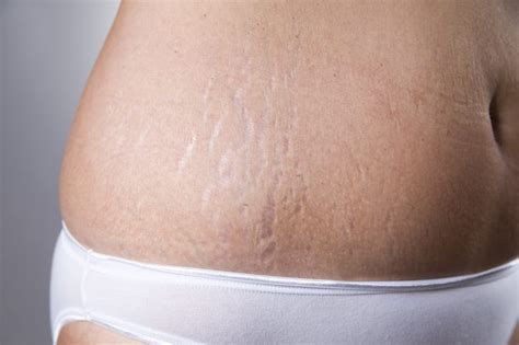 will tanning make stretch marks worse picture 7