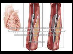plaque removal from arteries picture 3