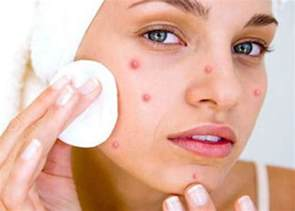 will phgh give you acne picture 5