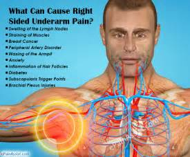 autoimmune axillary pain picture 9