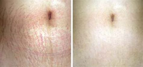 using triluma on stretch marks picture 3