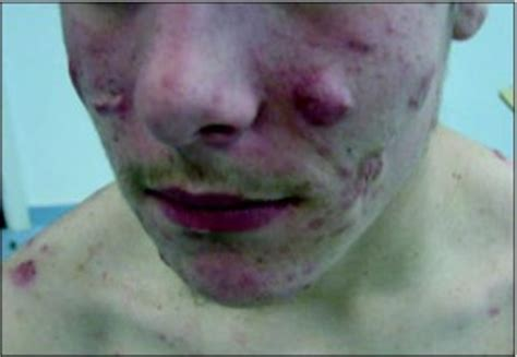nodnuel cystic acne medical definition picture 9