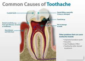 non medication remedies for tooth pain picture 1
