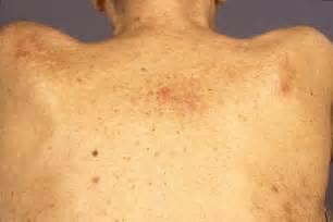 skin rash and leukemia picture 5