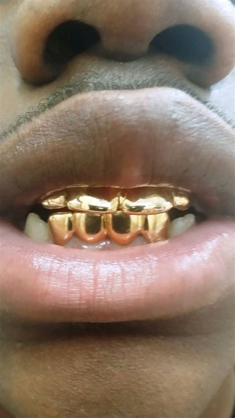 fulton street gold teeth picture 13