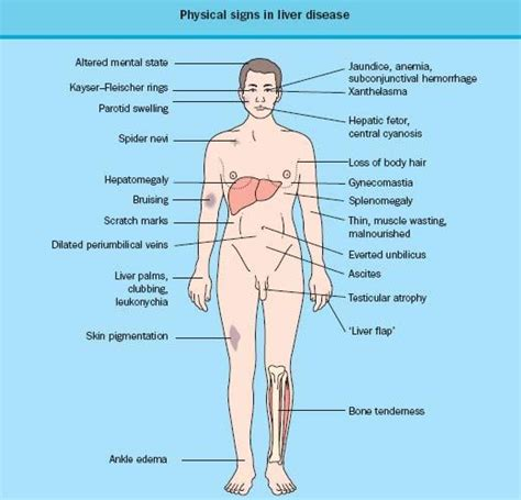 what are the signs of liver failure picture 6