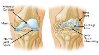 arthritic knee joint pain picture 7