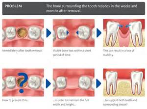 bone grafts and wisdom teeth picture 6