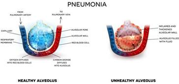 bacterial pneumonia contagious picture 2