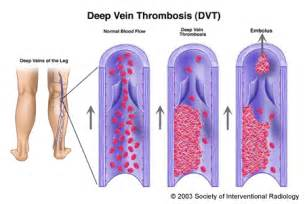 can pressure on nerves to legs cause blood clots picture 4