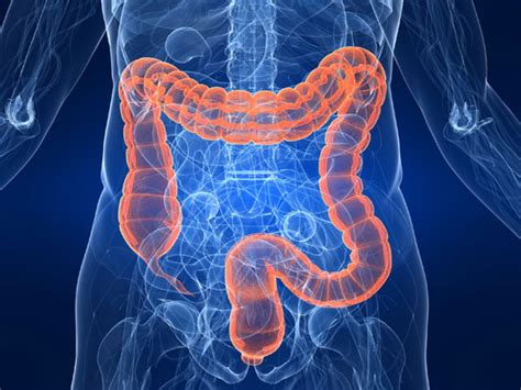 sluggish bowel picture 2