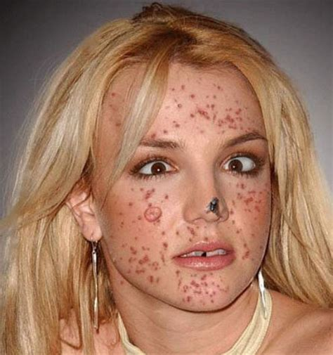 celebrities acne pictures picture 6