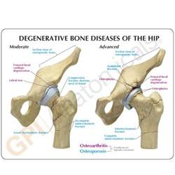 degenerative joint diseases picture 7