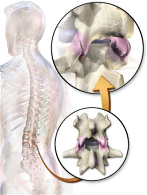 best future treatment for facet joint dysfunction picture 12