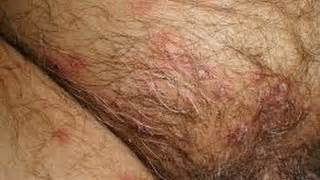 female genital herpes pictures picture 2