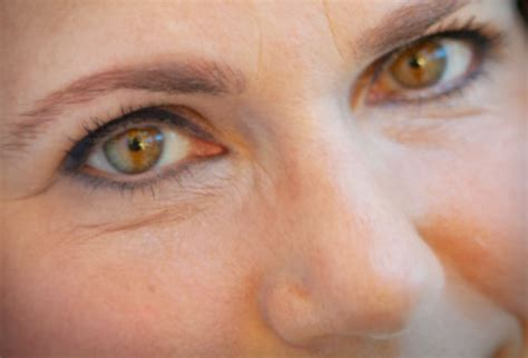 ageing eyes picture 6