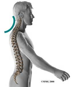 neck pain picture 11