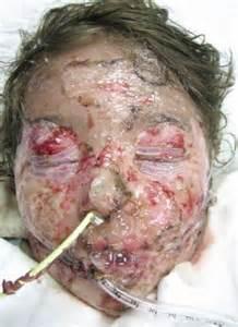 methamphetamine skin care picture 2