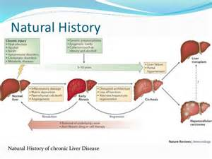 advanced portal cirrhosis liver picture 2