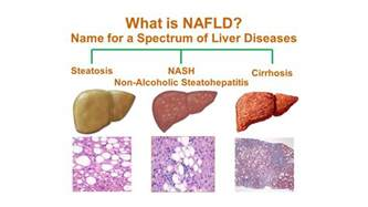 what is fatty liver disease and how is picture 3