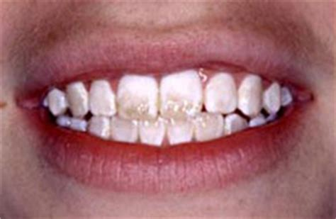 does calcium only in liquid harden tooth enamel picture 2