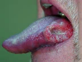 lip cancer photo picture 7