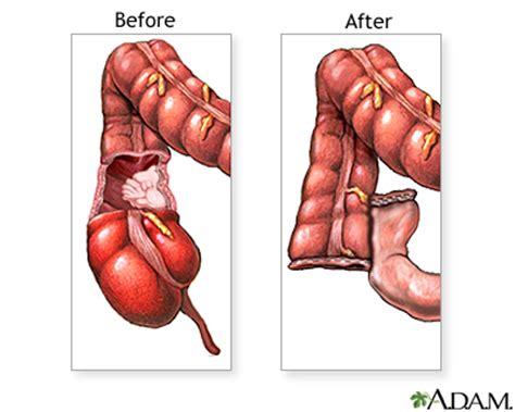 after surgery colon picture 3