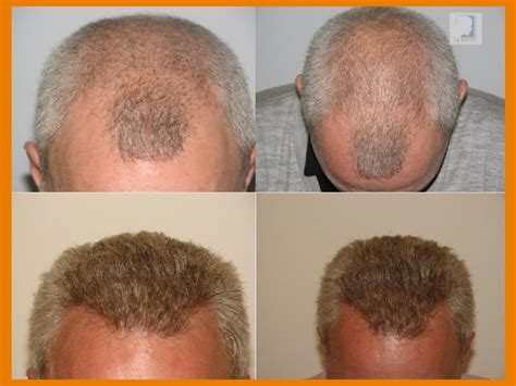ctr hair graft in dc picture 6