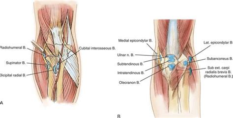bursitis in many joints picture 5