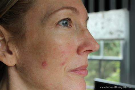 cystic acne around cheeks picture 18