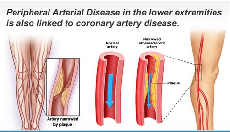 severe liver diseases picture 11