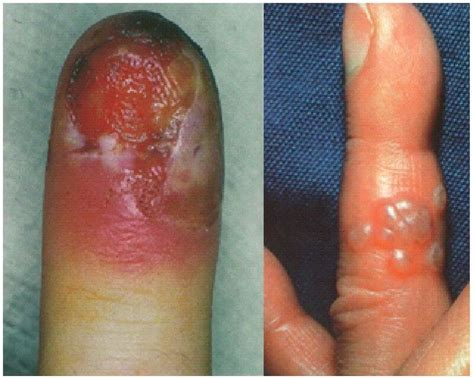 symptoms of virus going around picture 3