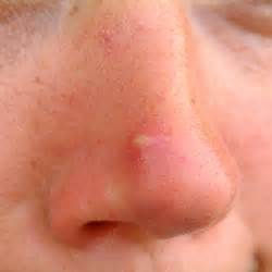 wart on nose bleeding from pores picture 12
