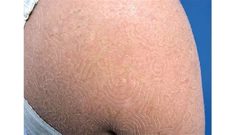 yeast infections of the skin picture 2