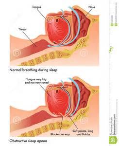 sleep apnea symptoms picture 3