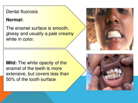 flu teeth discoloration picture 5