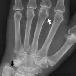 bone loss in h and calcium picture 3