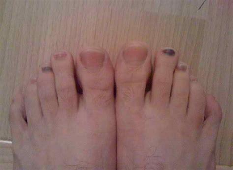 toenail fungus under nail black picture 3