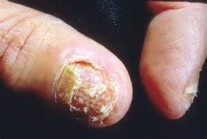difluian nail fungus picture 14