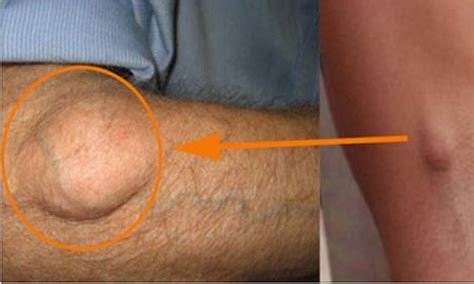 cysts fat people picture 1