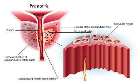 antibiotic prostatitis treatment picture 3