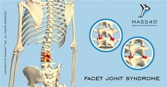 facet joint disease picture 11