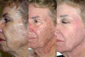 anti aging treatment buy picture 14